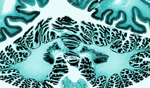 Three-dimensional map of brain