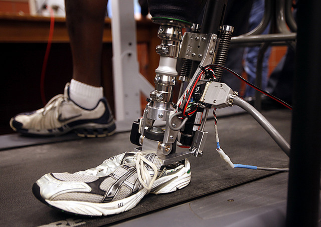 AlterG – a bionic foot