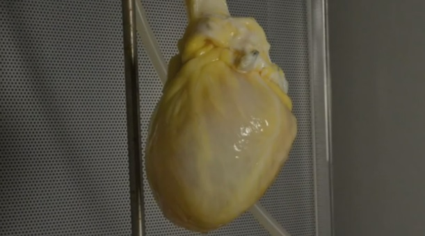 Artificial human heart
