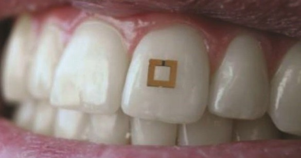 New Tooth Sensor Can Track What a Human Eats